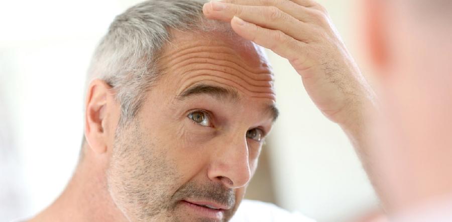 Лечение алопеции мужчина