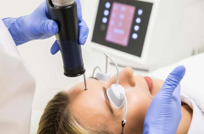 Лазерное лечение постакне в клинике Гравимед
