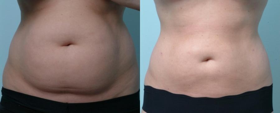 Триады: до и после процедуры