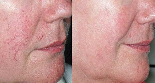 Лечение сосудистых проблем кожи до и после